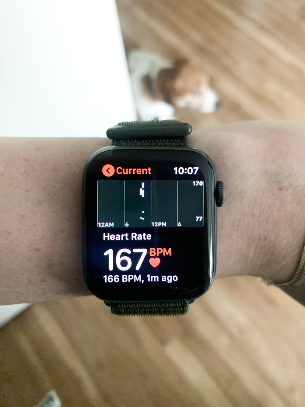 pots - high heart rate due to pots